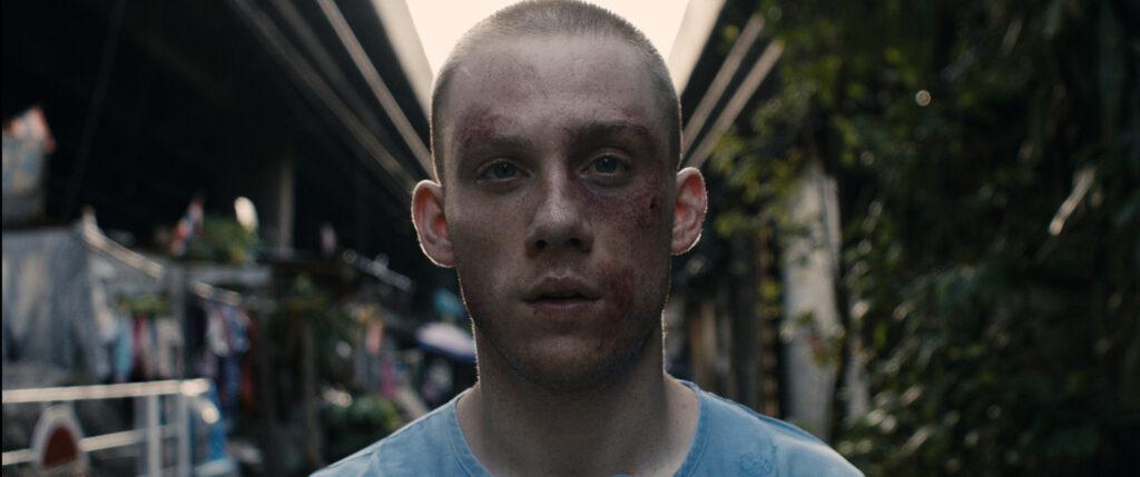 Billy sieht frontal in die Kamera, er hat blaue Flecken im Gesicht, er schaut nachdenklich