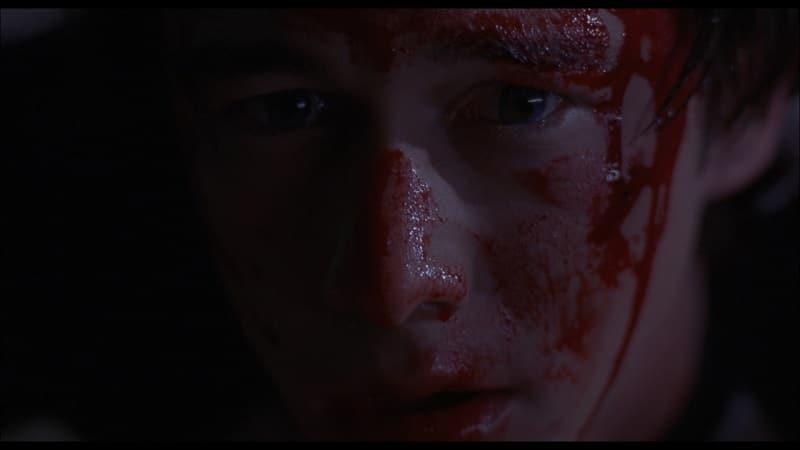Neil ist verstört, sein Gesicht blutig in Mysterious Skin